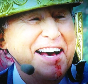 Coach Corso injured in battle